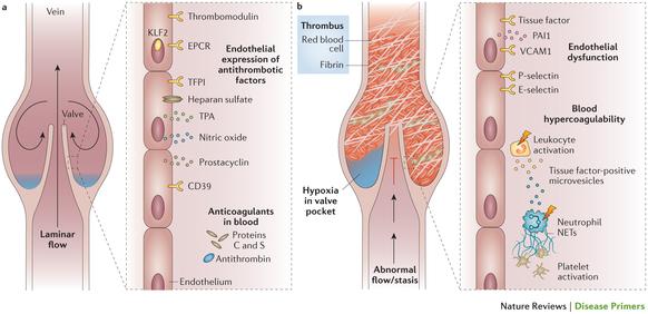 最新のPrimer:静脈血栓症   Nat...