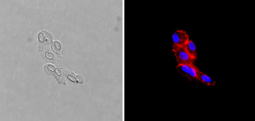 A tumor-derived circulating endothelial cell