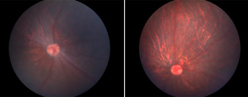 Mutant (left) and treated retinas.