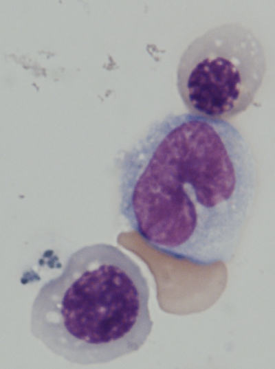 Image of human CD45+ blood cells differentiated from iPS cells.