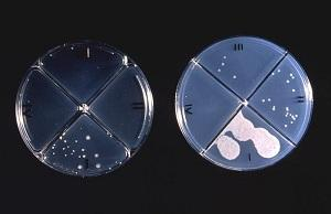 Agar culture plates used to test efficacy of new drugs against TB.