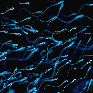 Routine genetic screening could reveal previously overlooked factors that contribute to male infertility by impeding the production of functional sperm cells.