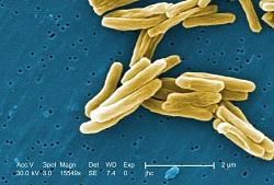 Mycobacterium tuberculosis bacteria as seen using a colorized scanning electron micrograph (SEM).