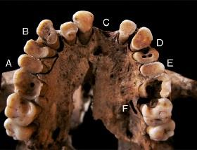 Taforalt jaw showing several cases of caries.