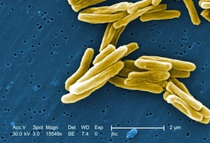 The tuberculosis bacteria steals human compounds to build its own cell walls