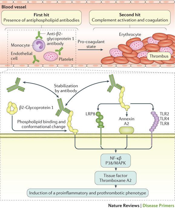 抗リン脂質抗体症候群 | Nature Reviews Disease Primers | Nature ...