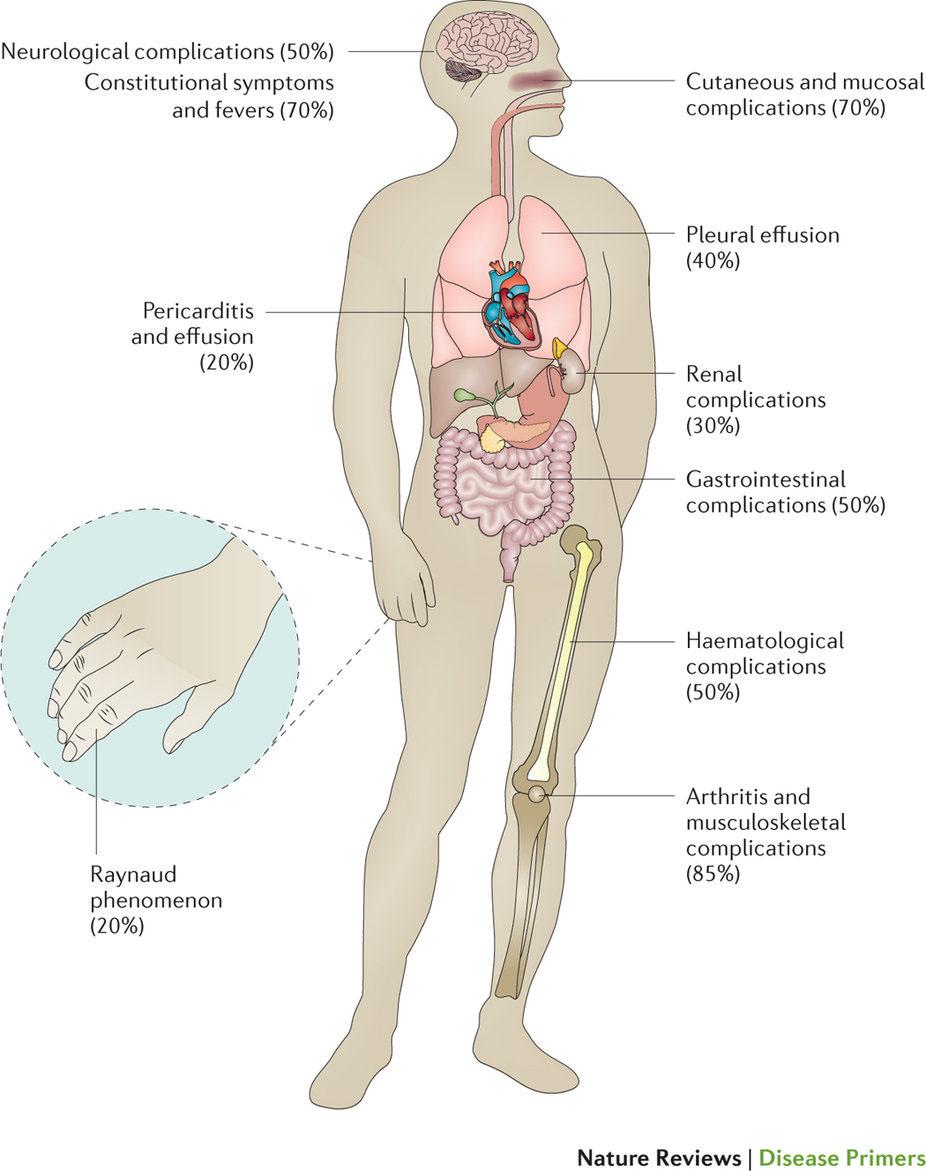 全身性エリテマトーデス | Nature Reviews Disease Primers | Nature ...