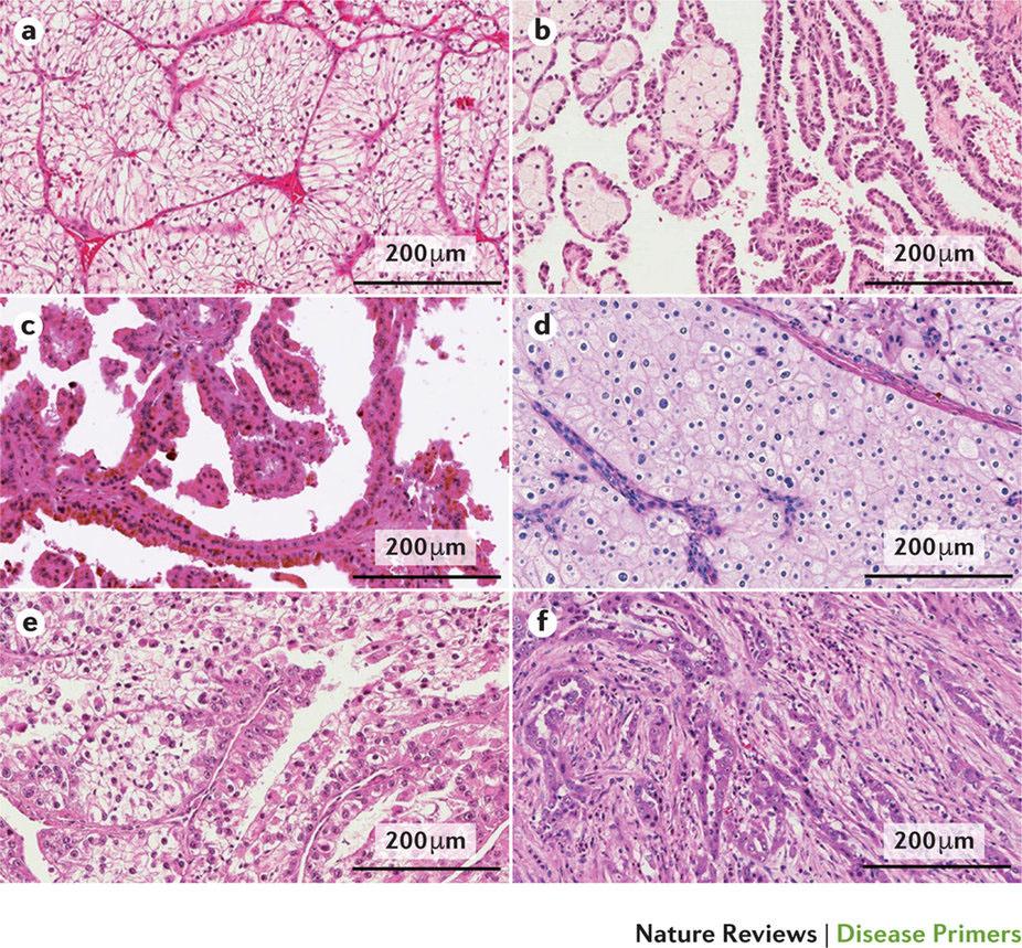 最新のPrimer:腎細胞がん | Nat...